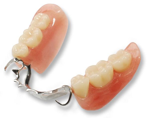 dentalprosthetics05