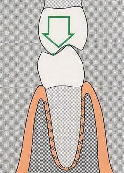 gnatologia 2