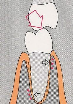gnatologia 3