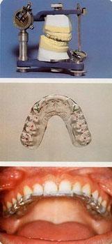 gnatologia 4