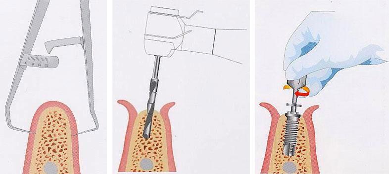 implantologia-1.1