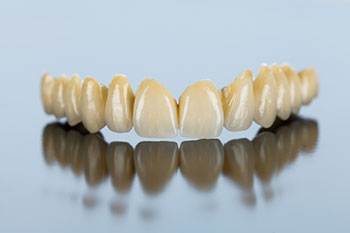 protesi_dentale_fissa