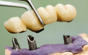 A dentist / dental technician placing the fixed partial denture ( the dental bridge) on the implants.