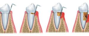 sondaggio parodontale 2