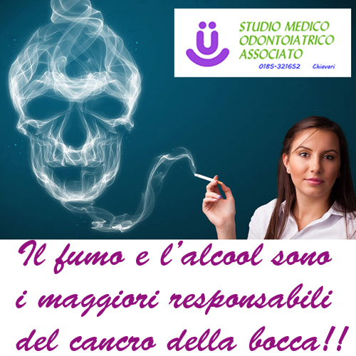 cancro orale