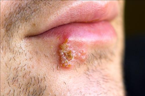 herpes labiale e ozono