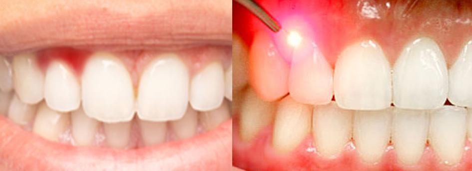 laser-parodontologia